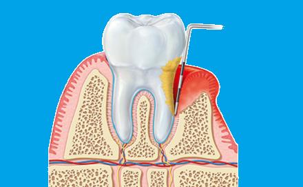 Tratamiento dental Periodoncia