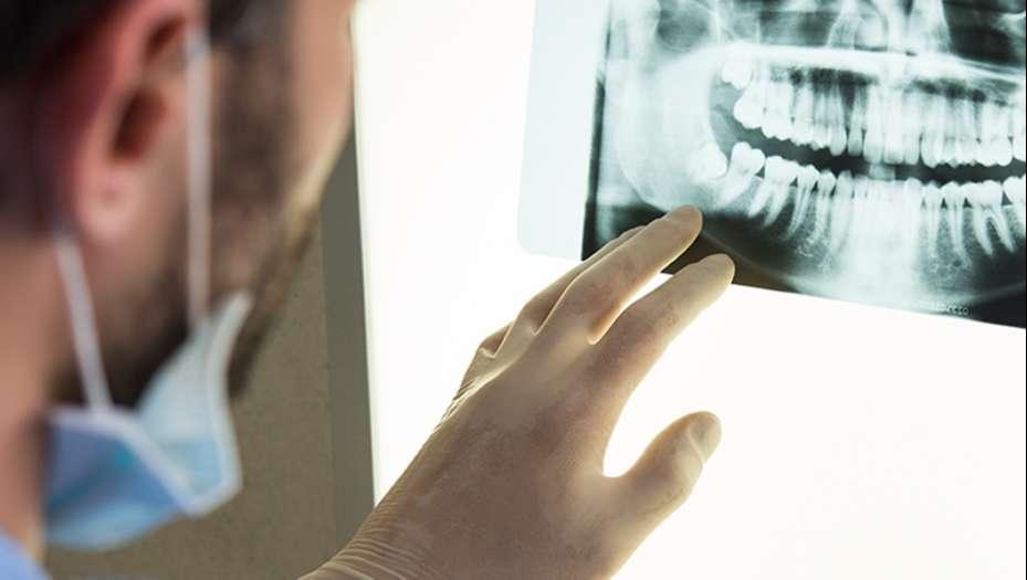 Periodontitis y Gingivitis