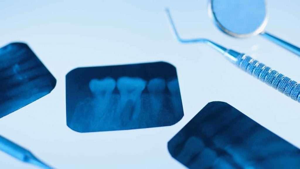 Odontología General | Diagnóstico del paciente