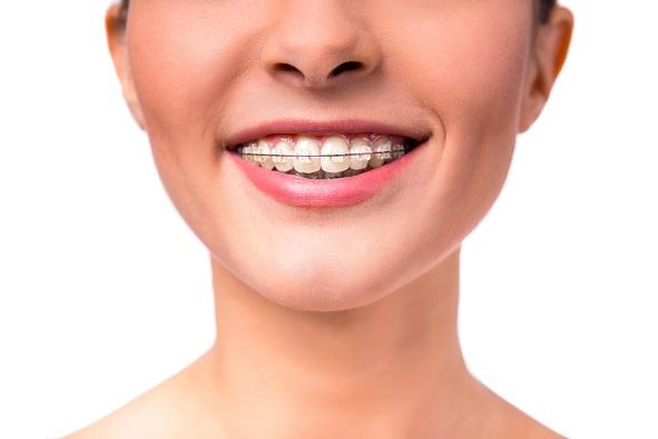 ortodoncia - brackets de zafiro