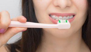 limpieza brackets ortodoncia