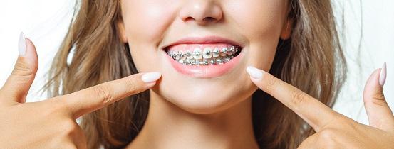 ortodoncia - brackets de acero