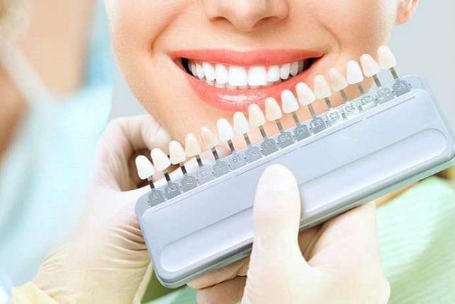 ¿Es recomendable el blanqueamiento dental?
